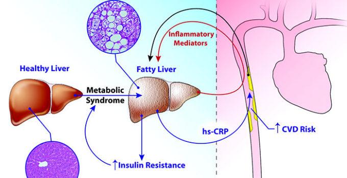 proteina-c-reattiva-bassa